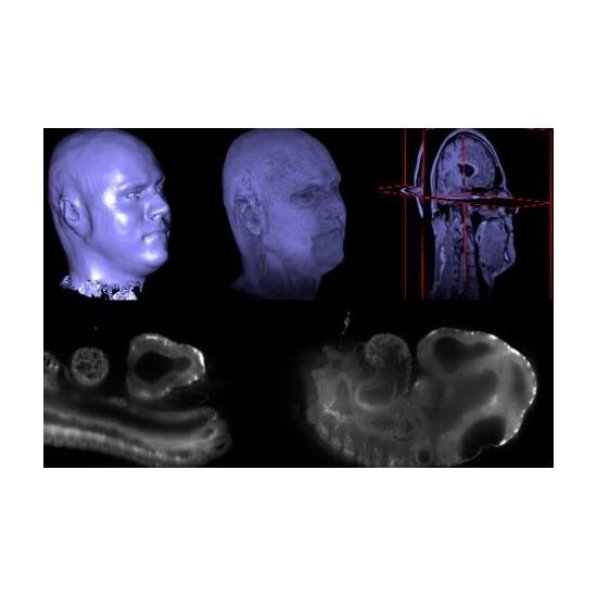 A 'WIKIPEDIA' FOR BIOMEDICAL IMAGES
