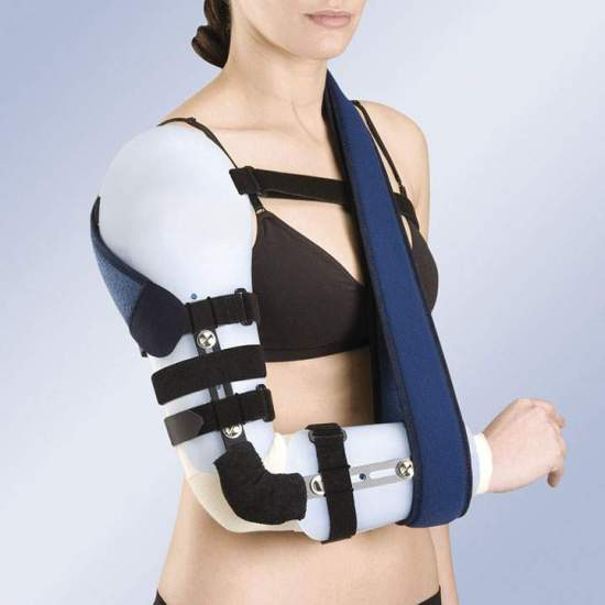 ORTHESIS OF ARTICULATED ARM ELBOW AND THERMOPLASTIC THERMOPLASTIC TP-6300 - Modular upper limb orthoses composed of humerus and forearm brace, elbow joint with flexo-extension adjustment system, block and guide for dimensional adjustment, adjustment straps and micro-clasp closure system that can be trimmed...