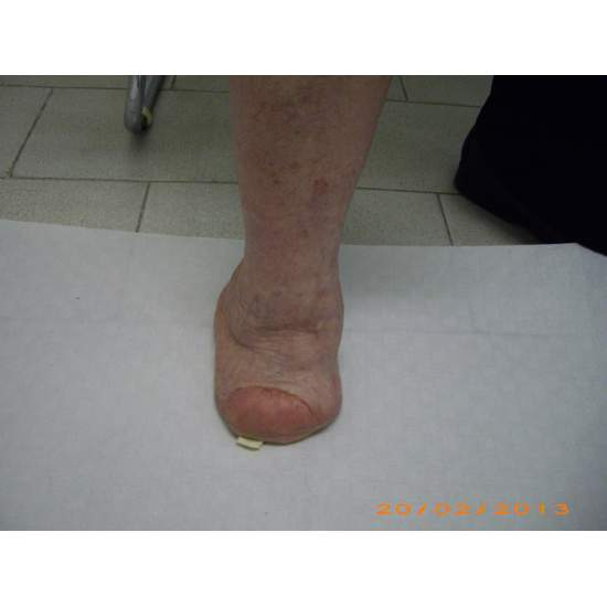 Many cases partial foot amputation - Several examples of partial foot amputation