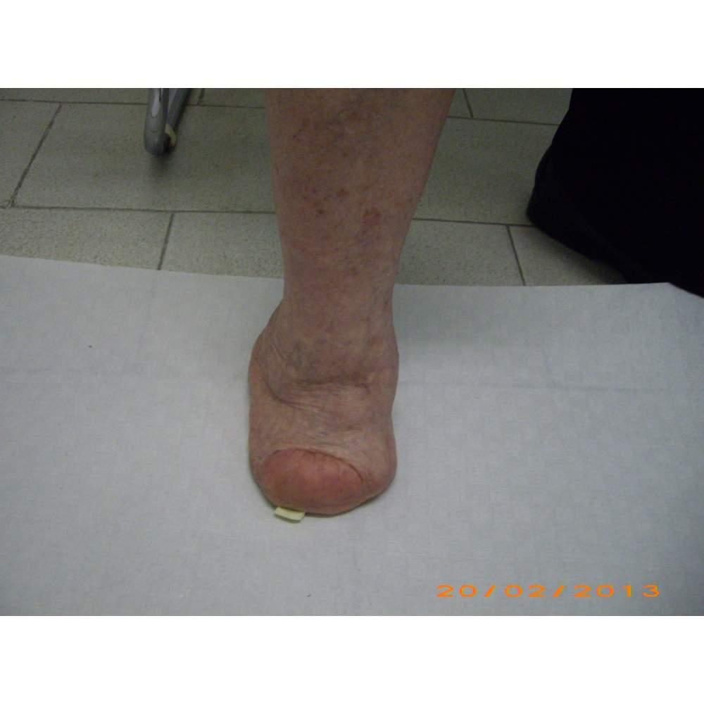 De nombreux cas d'amputation partielle du pied