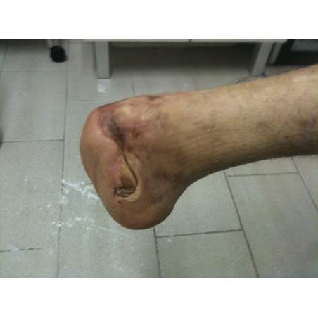 Many cases partial foot amputation