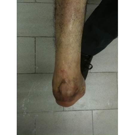 amputación de pierna debajo de la rodilla diabetes mellitus