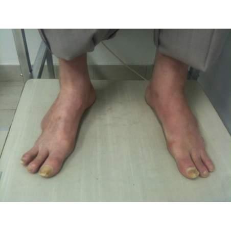 Amputazioni parziali del piede