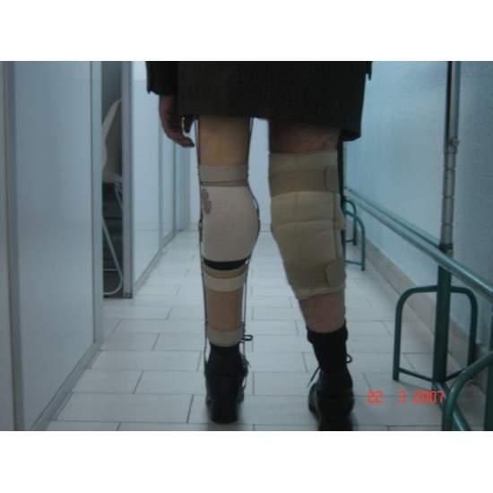 Aparatos largos de marcha - Fotos de algunos pacientes con aparatos largos de marcha