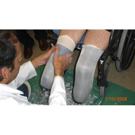 Bilateral lower limb amputation - Lower limb prostheses
