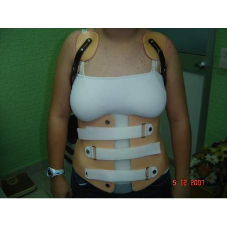Corset on the patient as