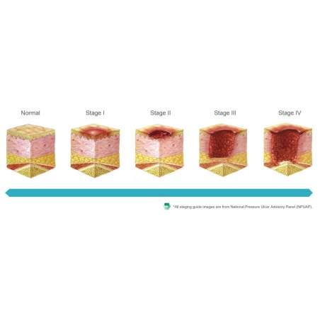 Colchon antiescaras Domus 4