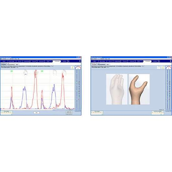 Azienda certificata sistema di Ortopedia Silvio MyoBock