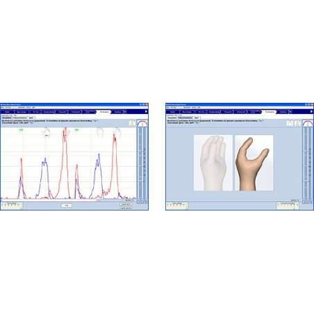 Silvio système Myobock société orthopédique certifié