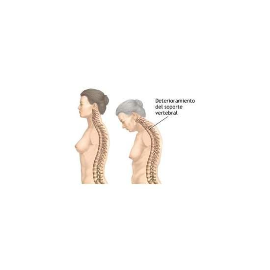 ¿QUE Es La Osteoporosis? Orliman NOTICIAS